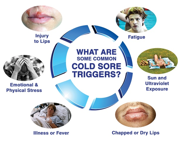 I'm back – Stress and cold sores go hand in hand.